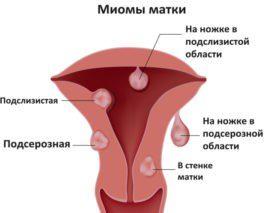 Разновидности миомы матки