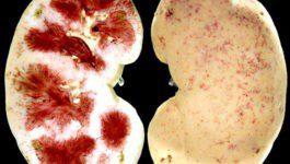 Как выглядит почка при хроническом пиелонефрите