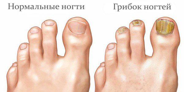 Грибок на ногах признаки
