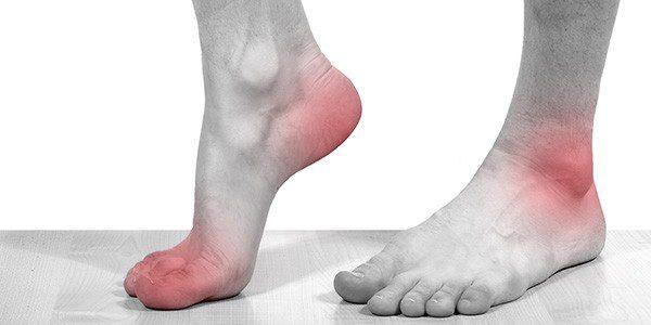 Подагра на пальце ноги лечение