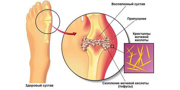 мазь для снятия боли в стопах