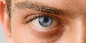 Причины возникновения, симптомы и лечение глазного давления
