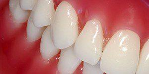 Покраснения вокруг зуба