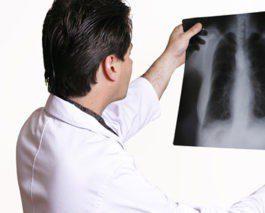 Доктор смотрит рентген