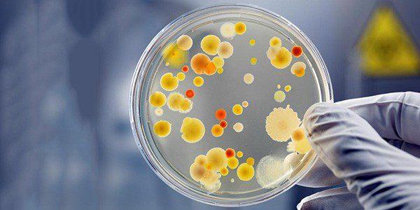 Диагностика микробов