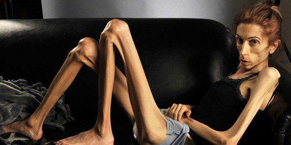 Человек больной анорексией