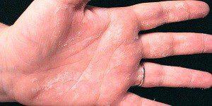 Шелушение кожи рук при дисгидрозе