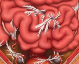 Спайки кишечника