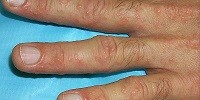 Чем лечить онихолизис на руках