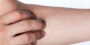 Чем опасны лимфоузлы. Противовоспалительные препараты при воспалении лимфоузлов на шее