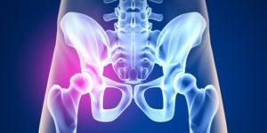 Остеопороз позвоночника симптомы и лечение в домашних условиях