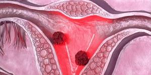 Опухоли в матке