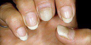 Заболевание ногтей онихолизис лечение 30