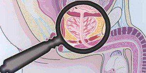 Осложнения после хламидиоза