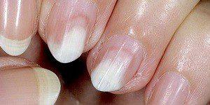 Заболевание ногтей онихолизис лечение 31