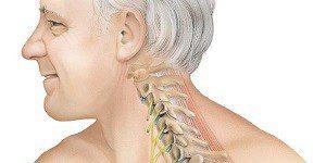 Последствия отложения солей на шее