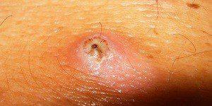 Симптомы паразитов под кожей