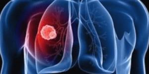 ХОБЛ (хроническая обструктивная болезнь лёгких)