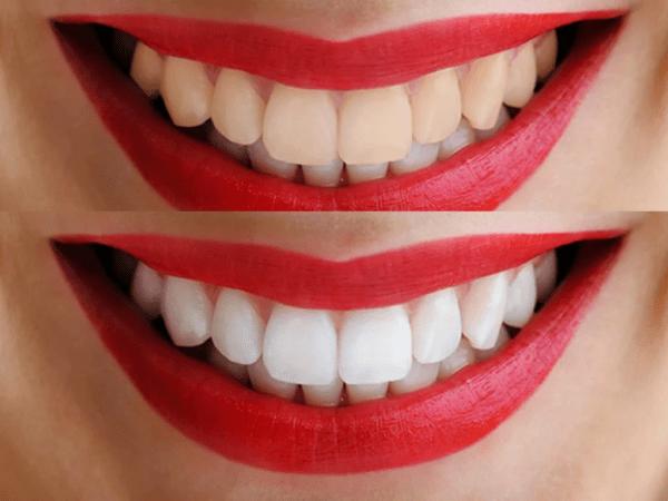 Отбеливание зубов пищевой содой