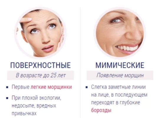 Отличительные особенности морщин вокруг глаз: поверхностные и мимические