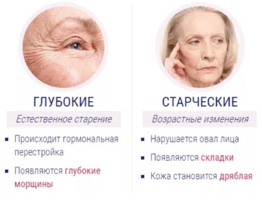 Отличительные особенности морщин вокруг глаз: глубокие и старческие