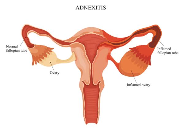 Аднекситом, как правило, болеют женщины репродуктивного возраста (20-35 лет).