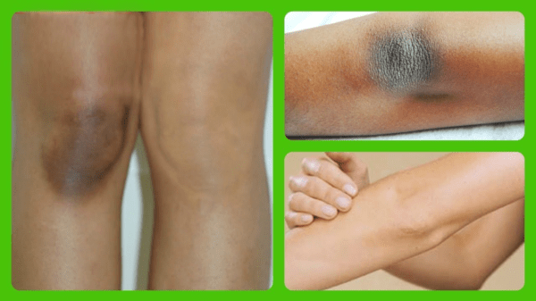 отбелить колени и локти